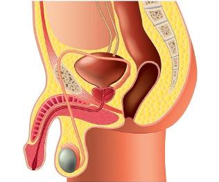 Boala Peyronie: Îndreptare, Tratament Naturist și Opțiuni Terapeutice